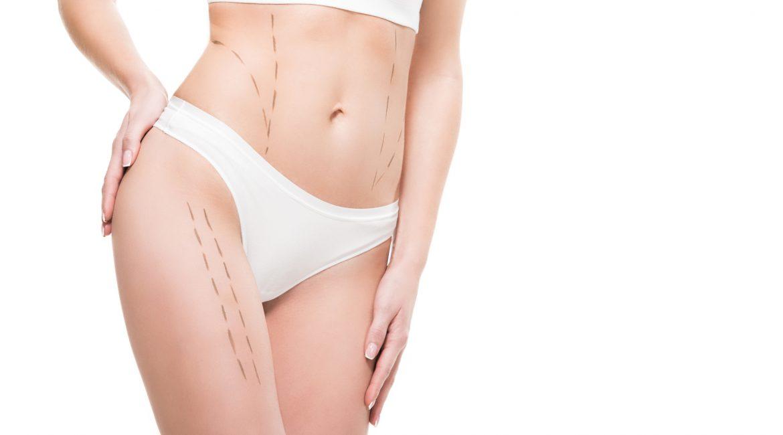 Liposuction vs. CoolSculpting Cincinnati Plastic Surgery