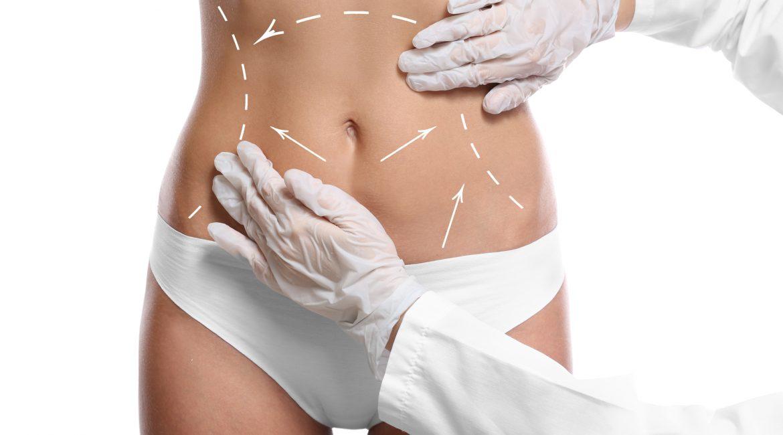 Preparing for Liposuction Cincinnati Plastic Surgery