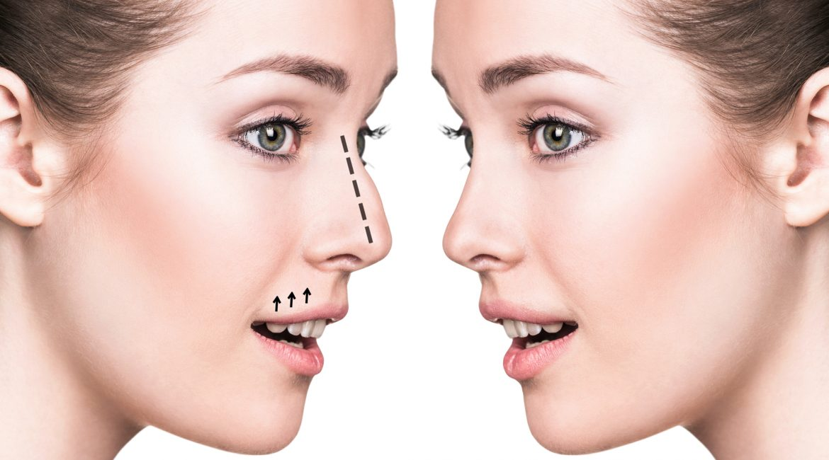 Reasons for Rhinoplasty Surgery Cincinnati Plastic Surgery