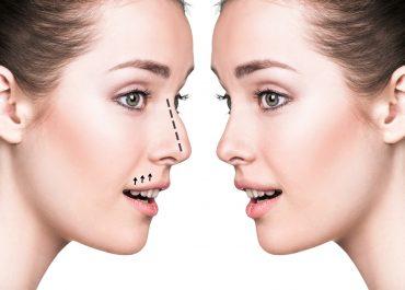 Rhinoplasty Surgery Reasons