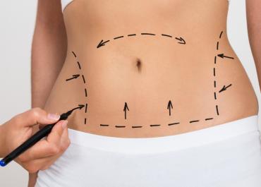 Tummy Tuck vs. Liposuction