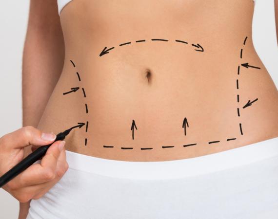 Tummy Tuck vs Liposuction Cincinnati Plastic Surgery