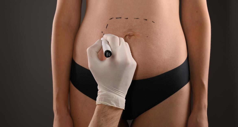 Common Plastic Surgery Procedures Cincinnati Plastic Surgery